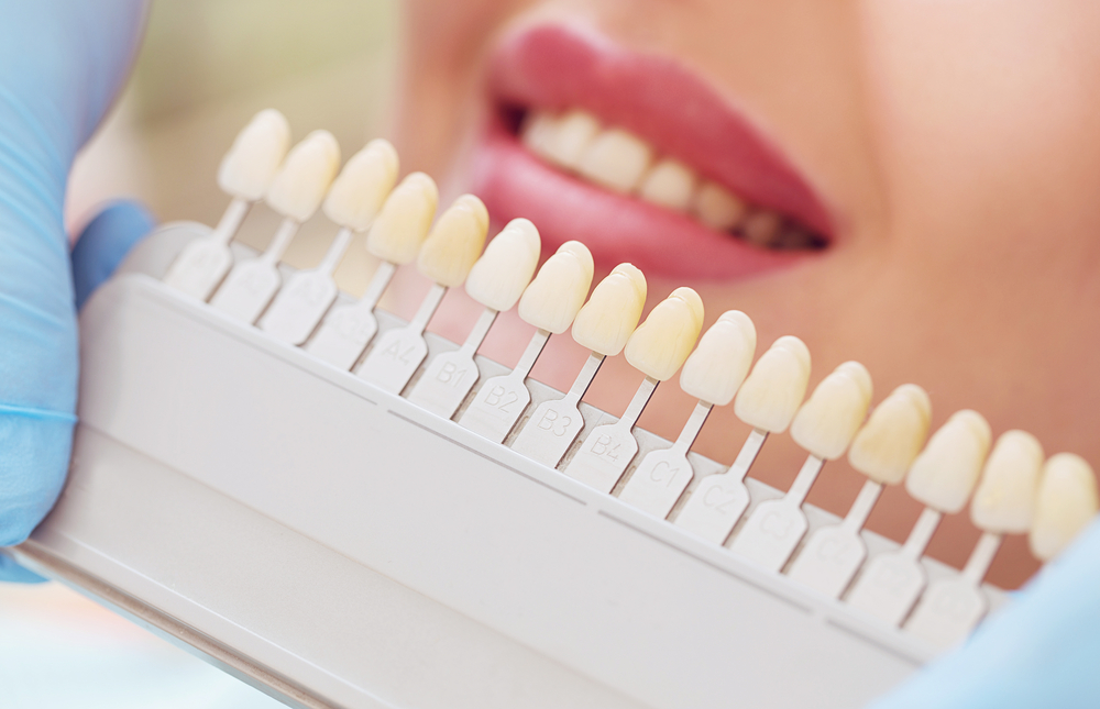 ¿De qué depende el color de los dientes?