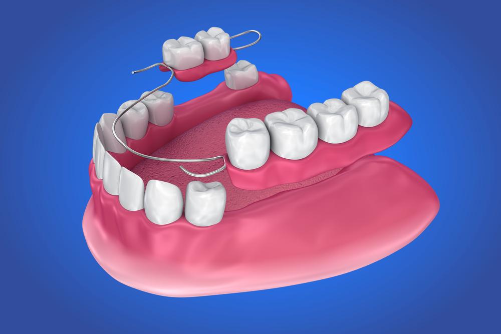 Las prótesis dentales en la antiguedad